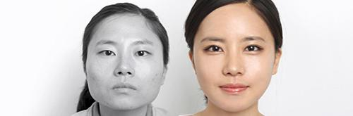 /upload/old_kmh/special_photo/public/facial%20contouring%20surgery_0.jpg